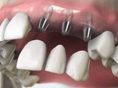 implantate1